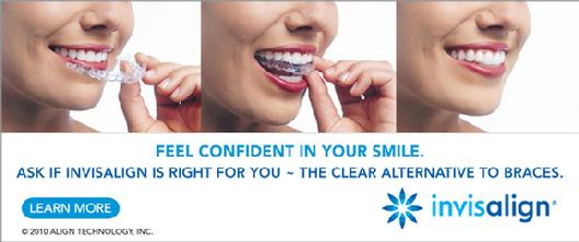 Invisalign Dr. Mollie Richardson Riverside Dental